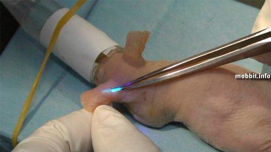 Светящийся имплантант